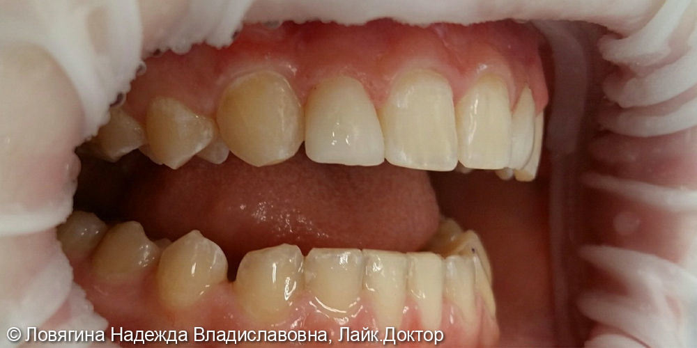 Реставрация зуба во фронтальном отделе верхней челюсти - фото №2