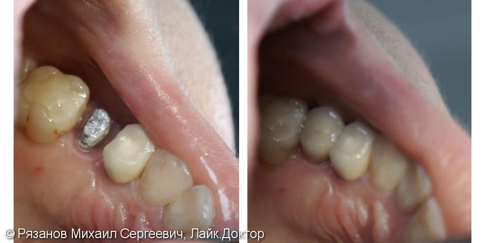 Восстановление зуба шрифтовой вкладкой - фото №1