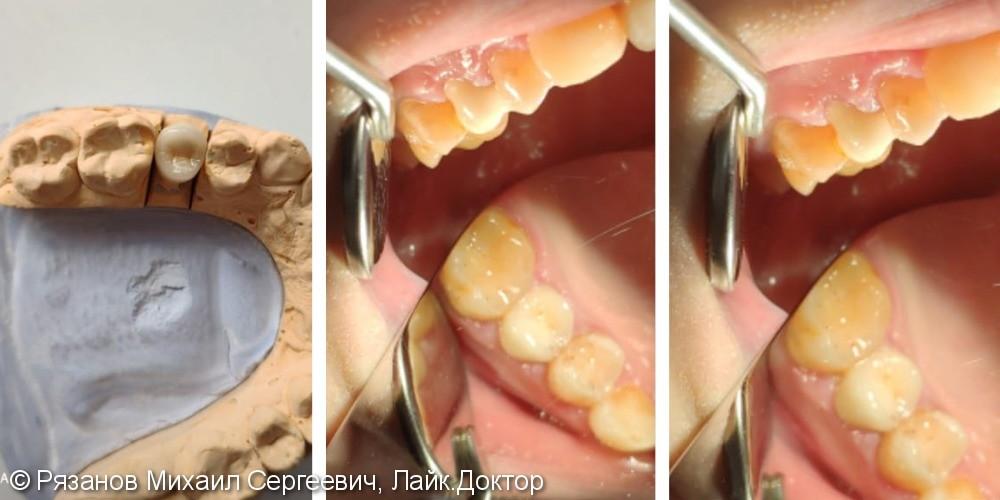Протезирование зубов, новый зуб похож на свой - фото №1