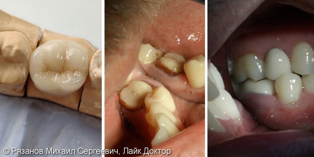 Протезирование зубов, коронка из диоксида циркония методом нанесения - фото №1