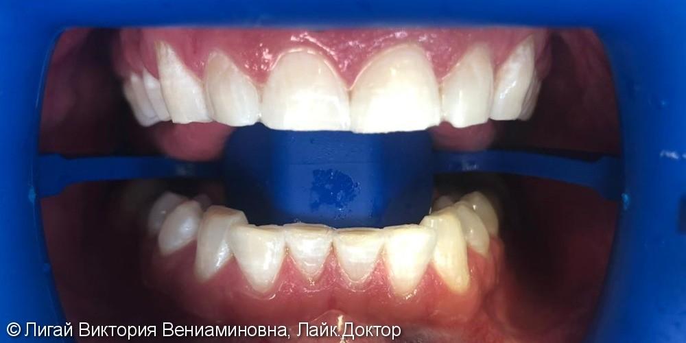 Отбеливание зубов системой Zoom - фото №2
