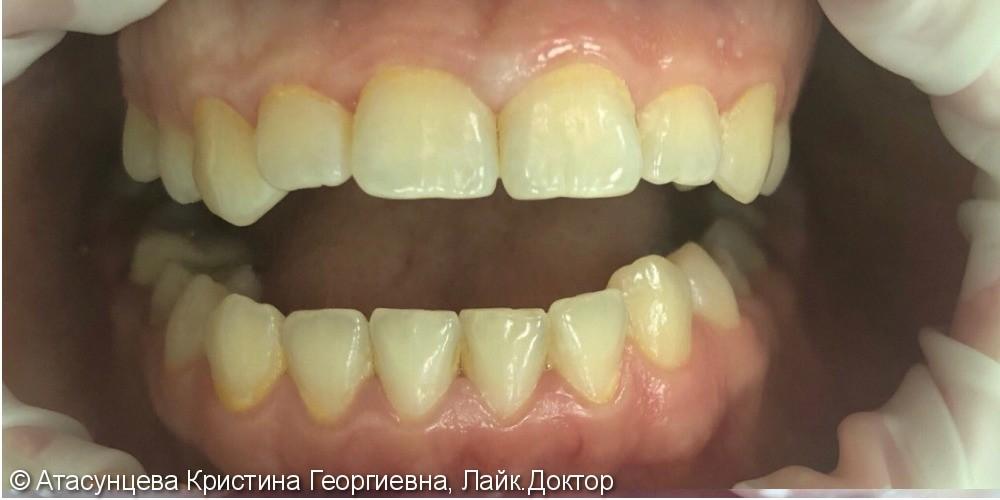 Гигиена полости рта - фото №1