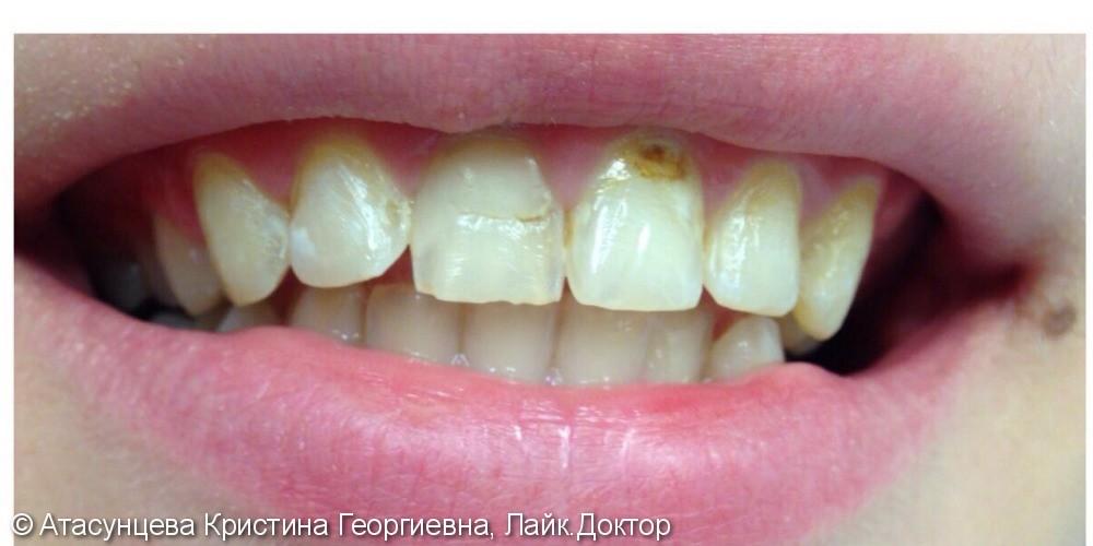 Реставрация фронтальных зубов - фото №1