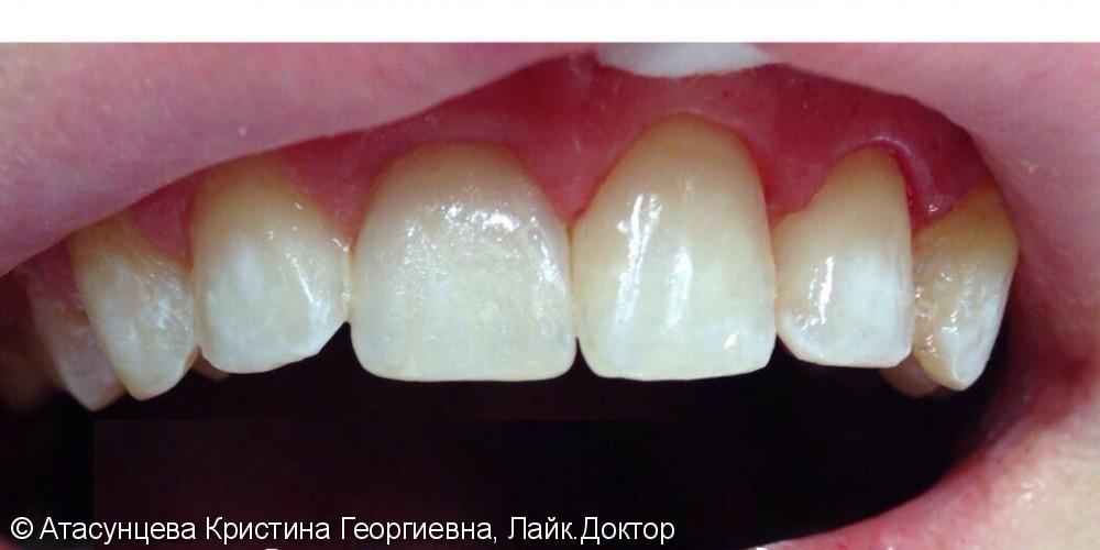 Реставрация фронтальных зубов - фото №2