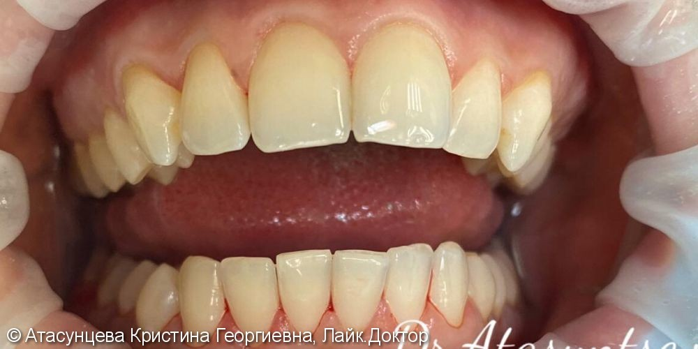 Комплексная гигиена полости рта - фото №2