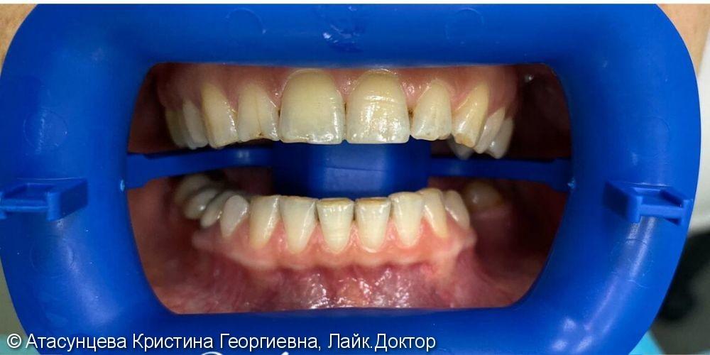 Oтбеливание зубов системой Zoom 4 - фото №1