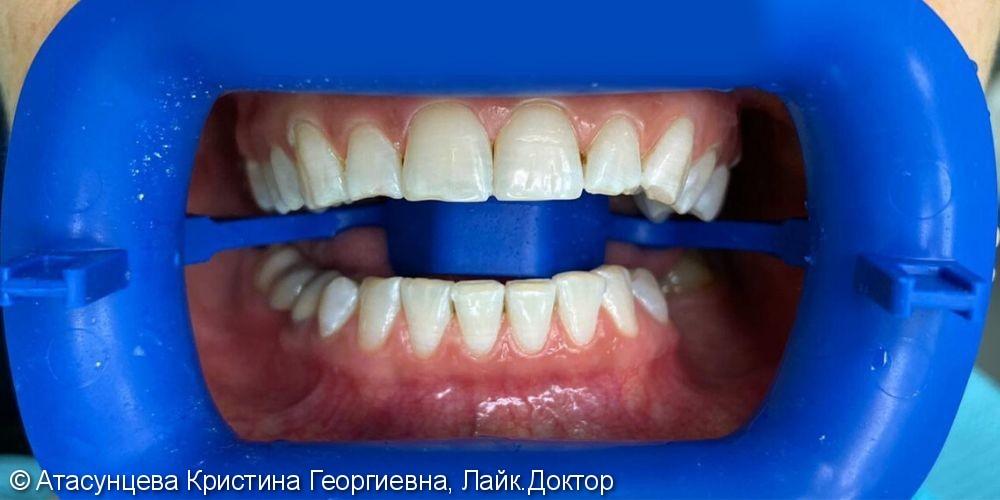 Oтбеливание зубов системой Zoom 4 - фото №2