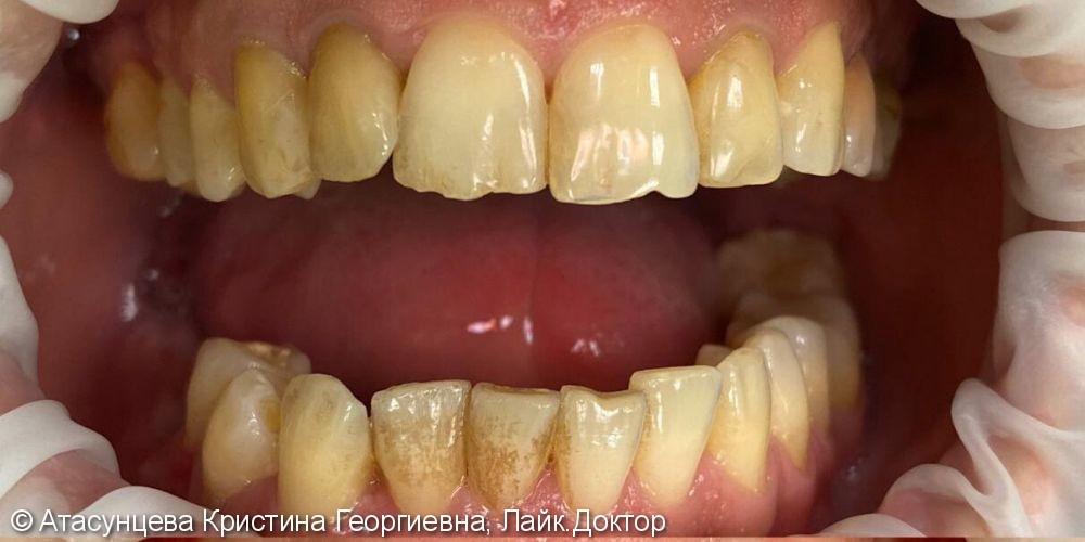 Комплексная гигиена полости рта - фото №1