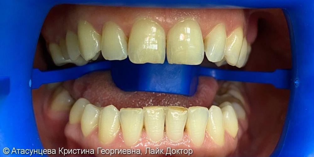 Отбеливание зубов Zoom4 - фото №1