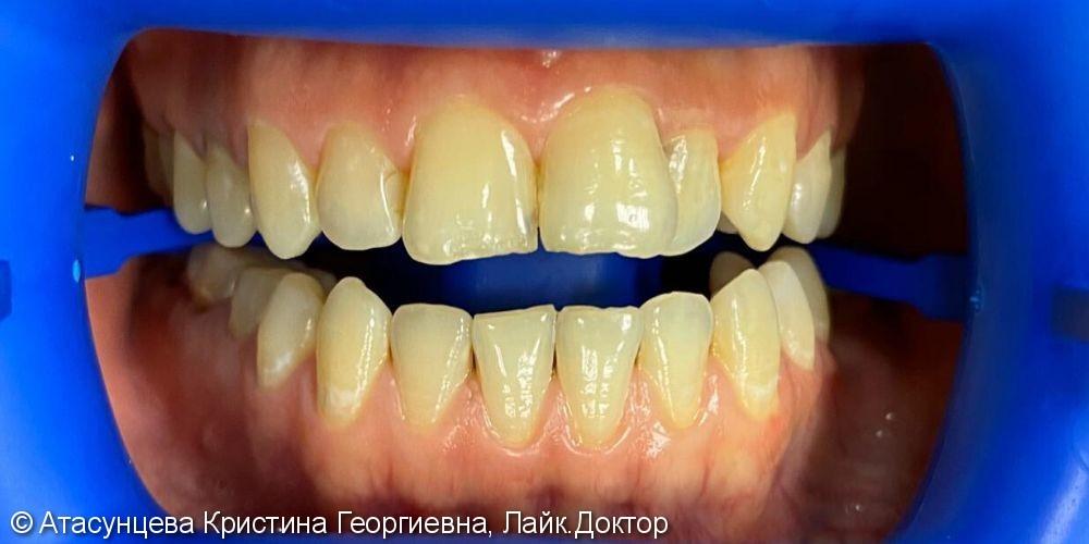 Профессиональное отбеливание зубов системой Zoom 4 - фото №1