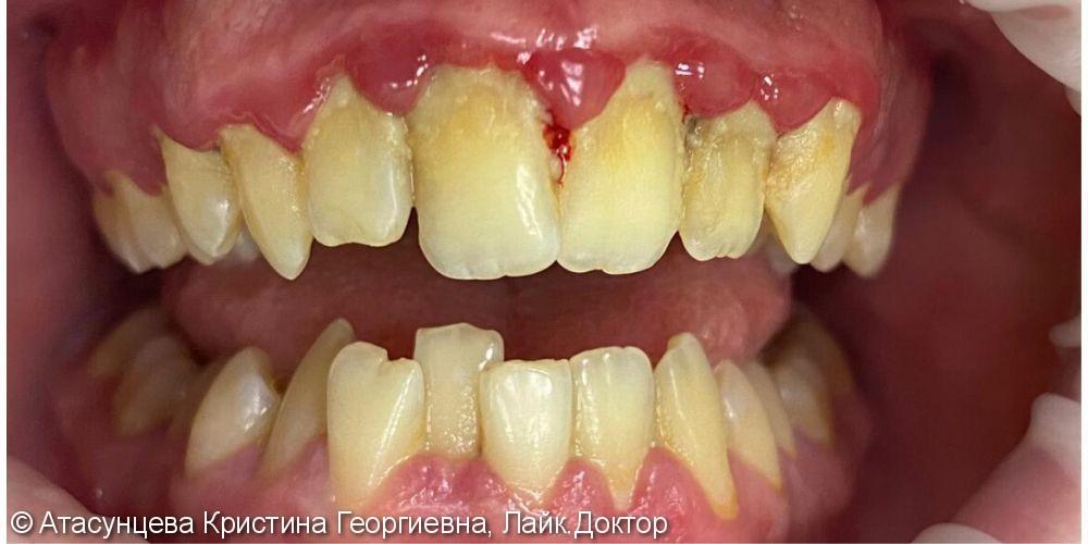 Комплексное лечение десен - фото №1