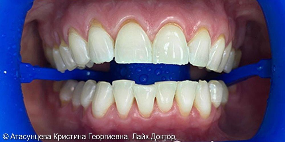Отбеливание зубов системой Zoom 4 - фото №2