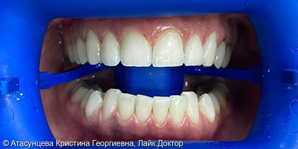 Отбеливание зубов Zoom4 - фото №2