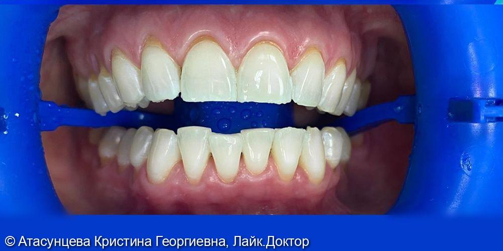 Профессиональное отбеливание зубов системой Zoom 4 - фото №2
