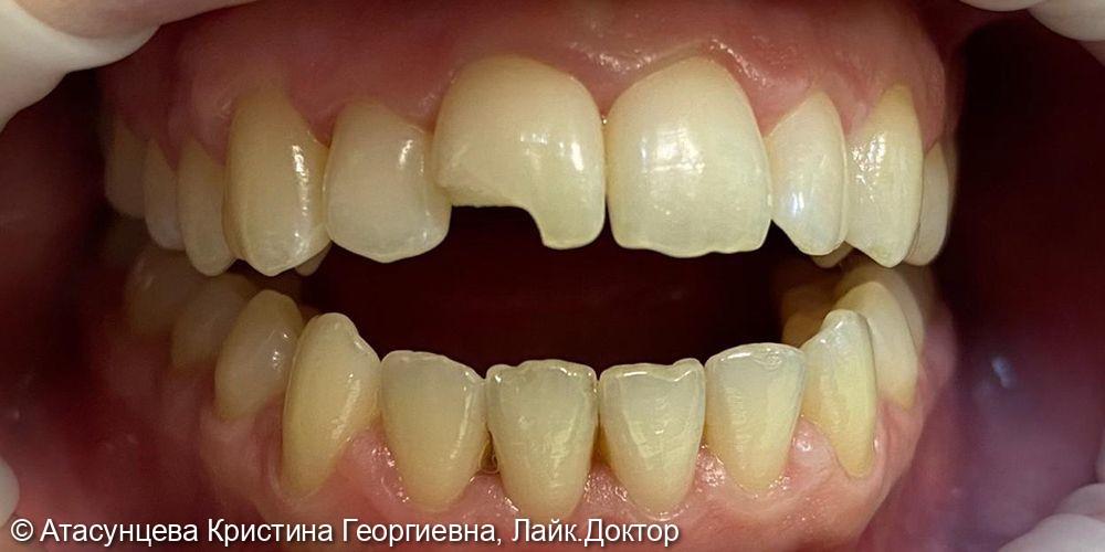 Реставрация зуба - фото №1