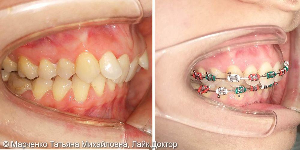 Исправление прикуса зубов - фото №1