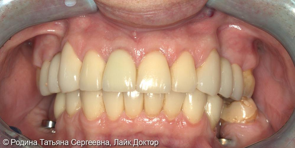 Имплантация - фото №2