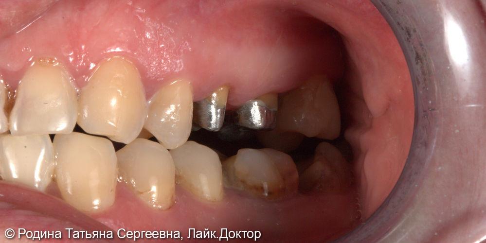 Восстановление зубов 2.5 и 2.6 коронками - фото №1