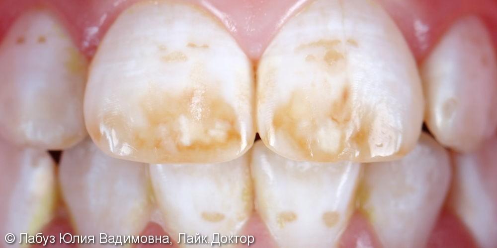 Лечение некариозного поражения зубов - фото №1
