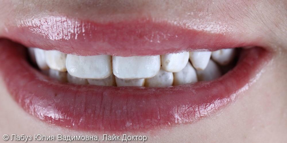 Лечение некариозного поражения зубов - фото №2