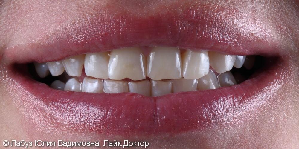 Профессиональная гигиена полости рта - фото №2