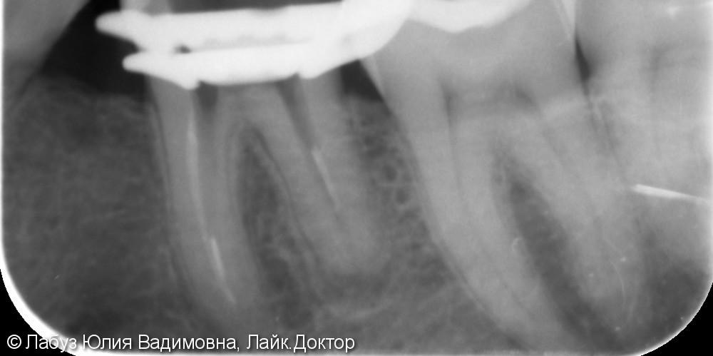 Эндодонтическое лечение зуба - фото №1
