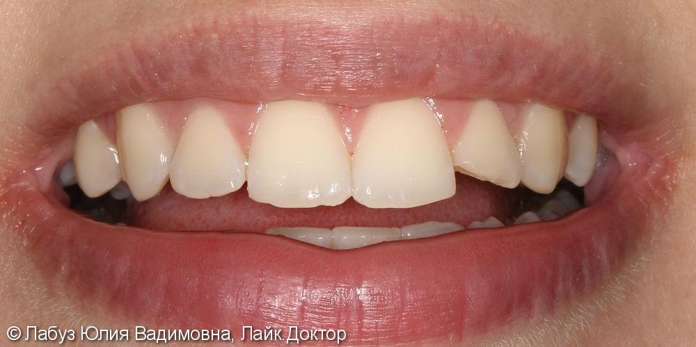 Реставрация зуба 2.2 - фото №1