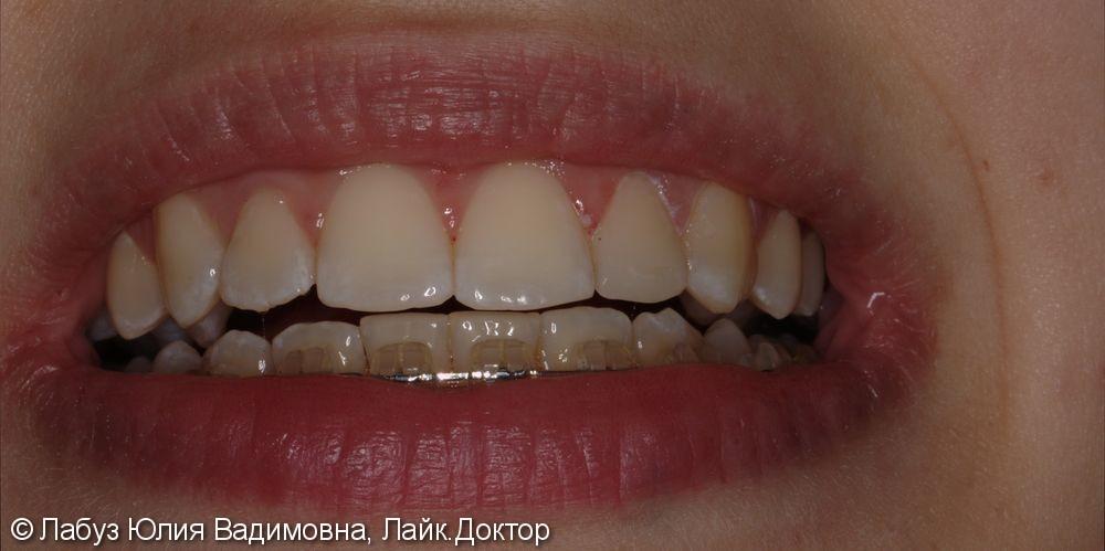 Реставрация зуба 2.2 - фото №2
