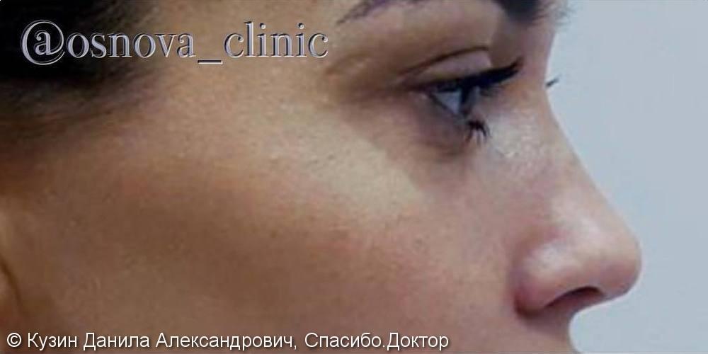 Изменение носа с помощью ринопластики, фото до и после - фото №1
