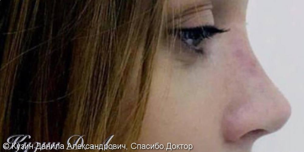 Изменение носа с помощью ринопластики, фото до и после - фото №2