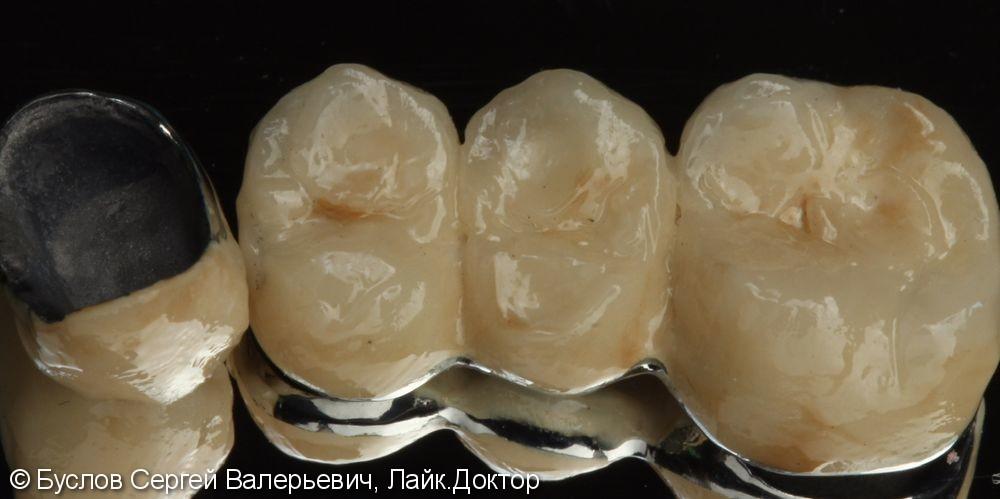 Лечение отсутствующего 16 жевательного зуба на верхней челюсти слева - фото №2