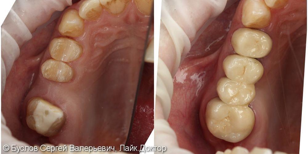 Лечение отсутствующего 16 жевательного зуба на верхней челюсти слева - фото №1