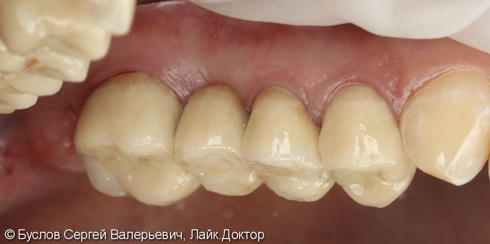 Лечение отсутствующего 16 жевательного зуба на верхней челюсти слева - фото №5