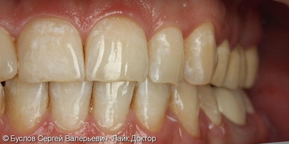 Лечение отсутствующего 16 жевательного зуба на верхней челюсти слева - фото №3