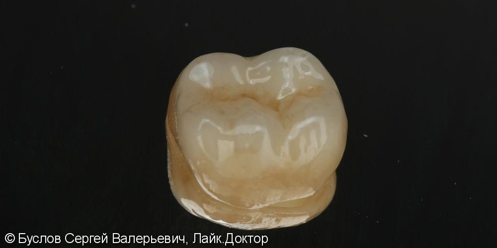 Протезирование  коронкой из диоксидциркония с нанисением зуб 4.6 - фото №1