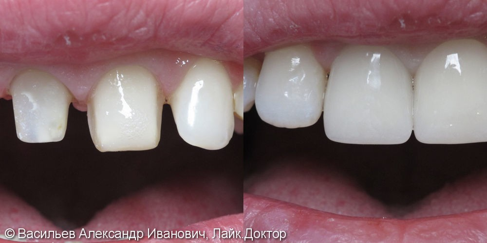 Реставрация передних зубов - фото №1