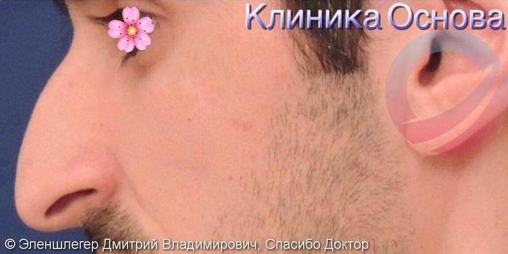 Исправление искривления носовой перегородки, фото до и после операции - фото №1