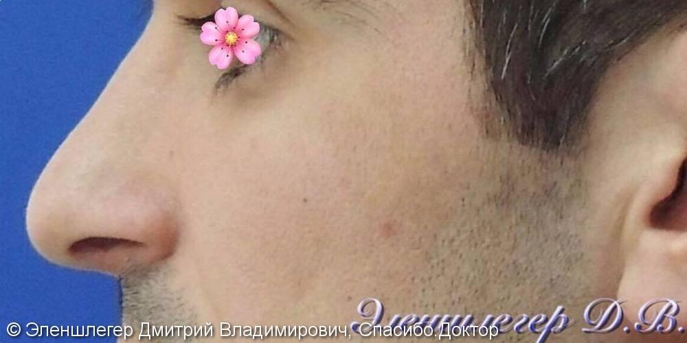 Исправление искривления носовой перегородки, фото до и после операции - фото №2
