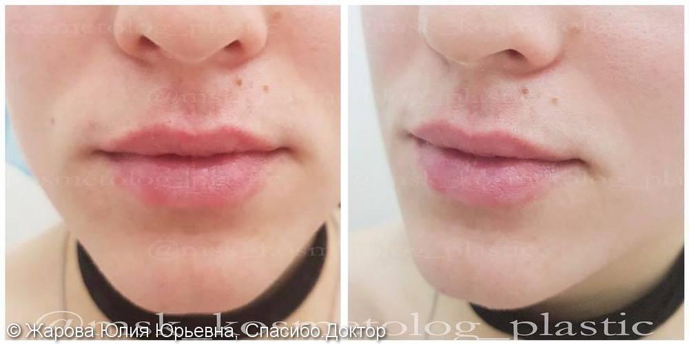 Придать естественный умеренный объем губам, препарат Ювидерм Ультра 3 - фото №1