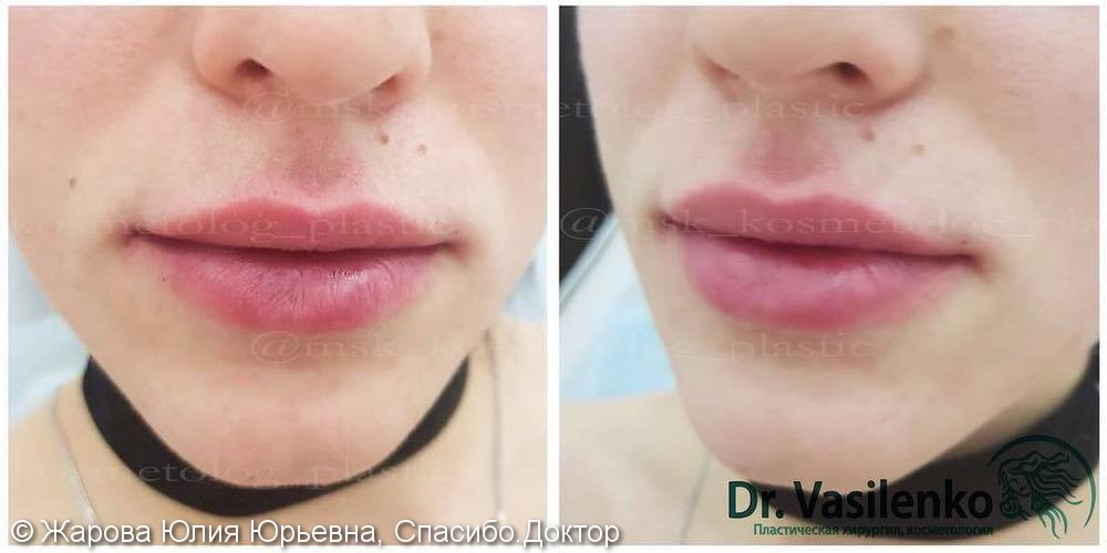 Придать естественный умеренный объем губам, препарат Ювидерм Ультра 3 - фото №2