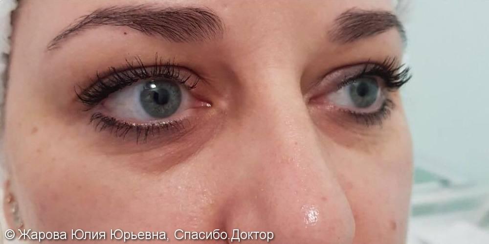 Результат коррекции слезной борозды, фото до/после - фото №1