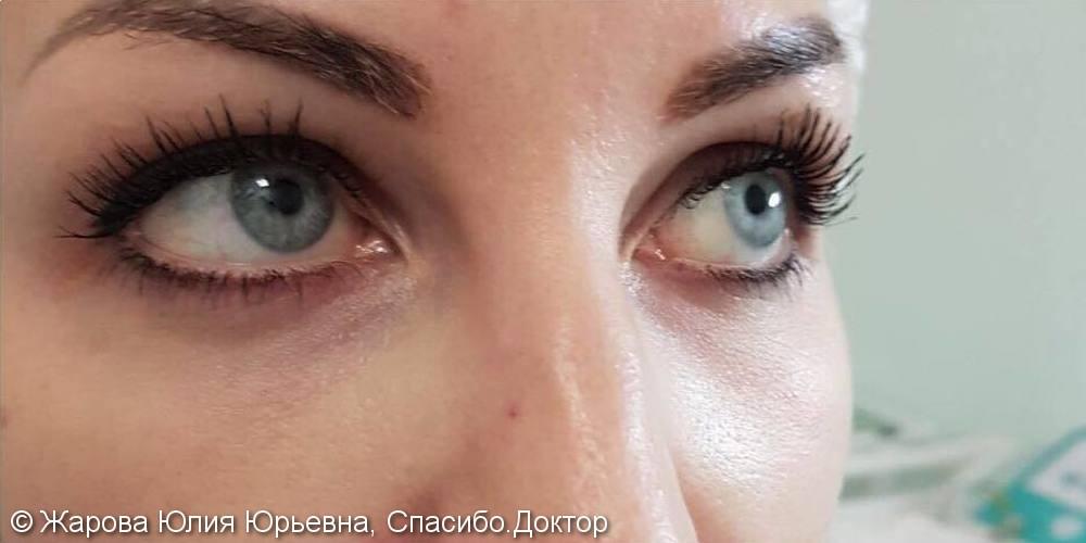 Результат коррекции слёзной борозды на фото до и после, синяки под глазами скрыли - фото №1