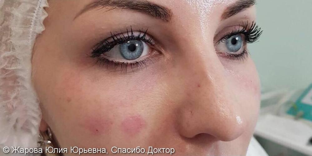 Результат коррекции слёзной борозды на фото до и после, синяки под глазами скрыли - фото №2