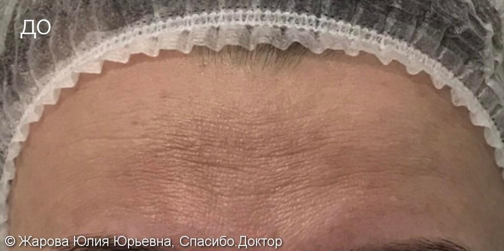 Коррекции мимических морщин препаратом диспорт, фото до/после - фото №1