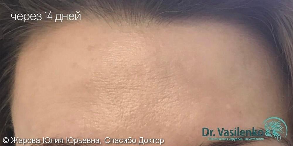 Коррекции мимических морщин препаратом диспорт, фото до/после - фото №2