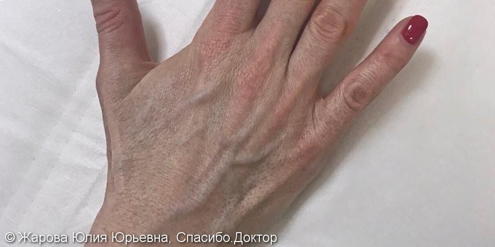 Фотоомоложения тыльной поверхности кистей рук, фото до и после - фото №1