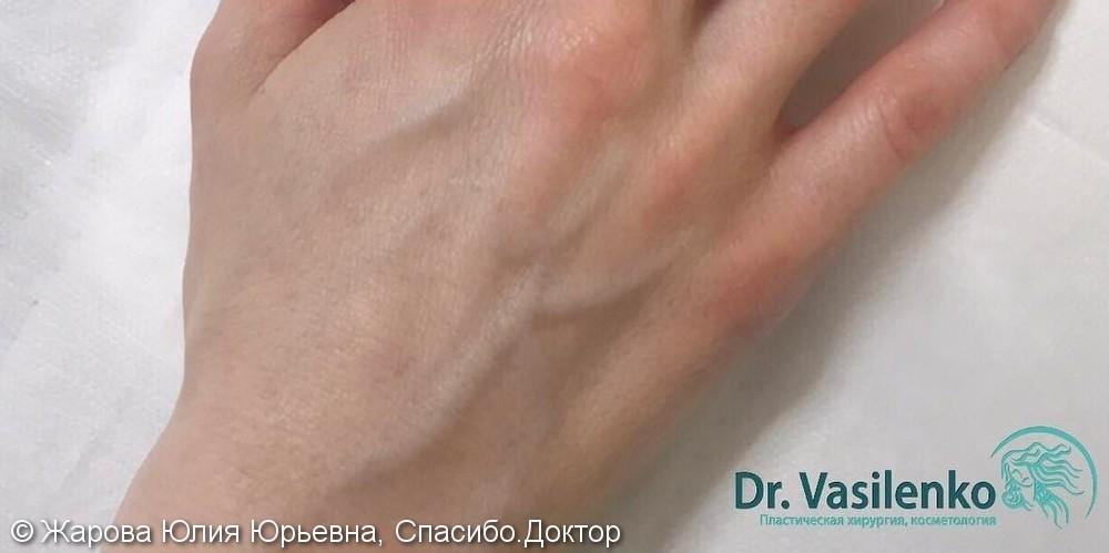 Фотоомоложения тыльной поверхности кистей рук, фото до и после - фото №2