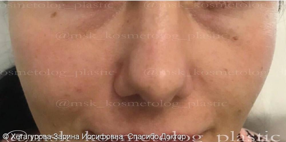 Фото до и после коррекции средней трети лица препаратом Радиесс - фото №2