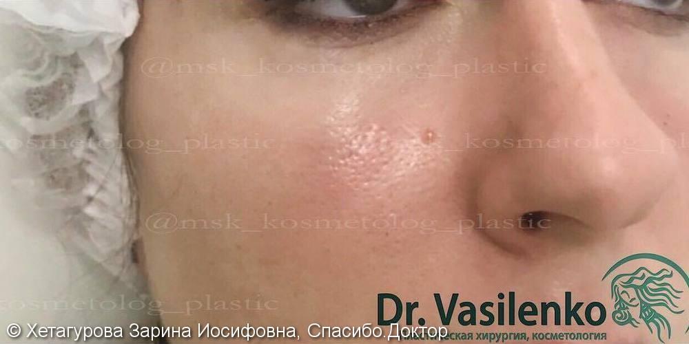 Фото до/после контурной коррекции средней трети лица с использованием препарата Radiesse - фото №2