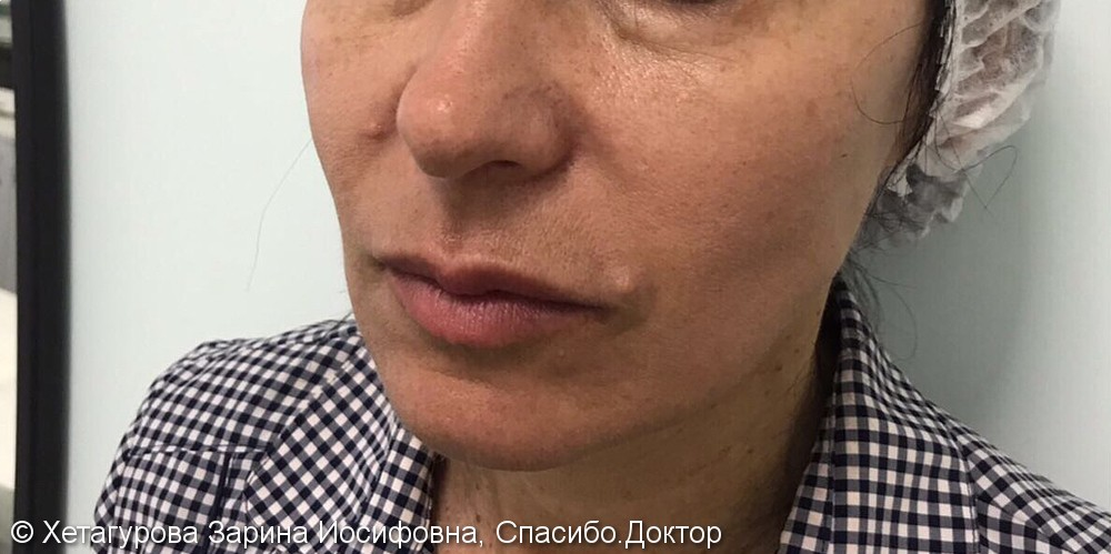 Фото до/после восстановления объема средней трети лица, 54 года - фото №1